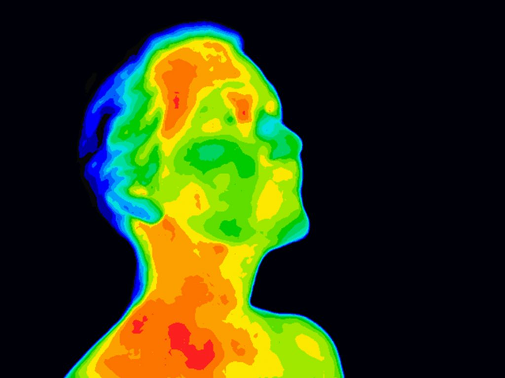 Thermographic image of human